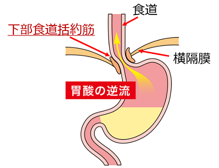 胃酸の逆流